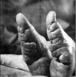 实拍三寸金莲 清末妇女裹脚缠足文化